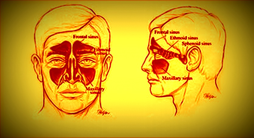 || Sinus are air filled tissues in your frontal facial area ||